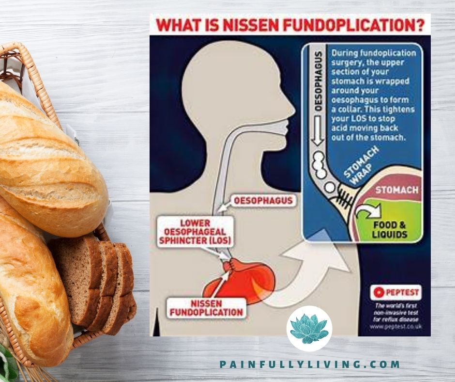 A white-washed wood plank background with whole loaves of bread in the lower left corner.  Off set to the right is an graphic that explains and shows an illustrated image of  the Nissen procedure.